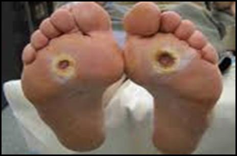 Cebolas de um tratamento de fungo de pé da casa